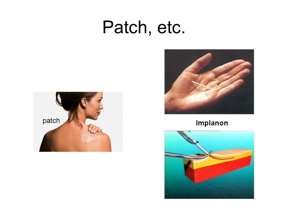 Patch, etc. patch Implanon