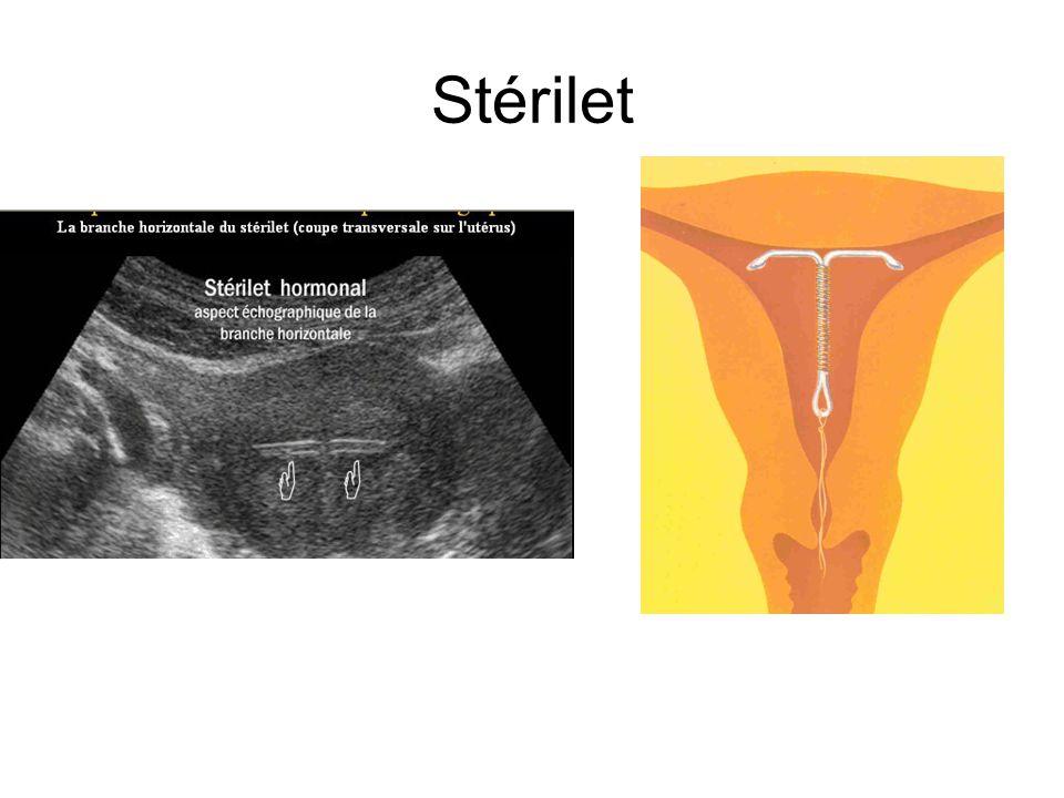 Stérilet
