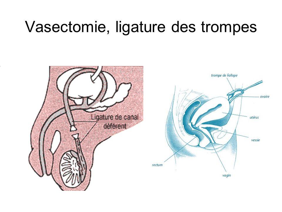 Vasectomie, ligature des trompes