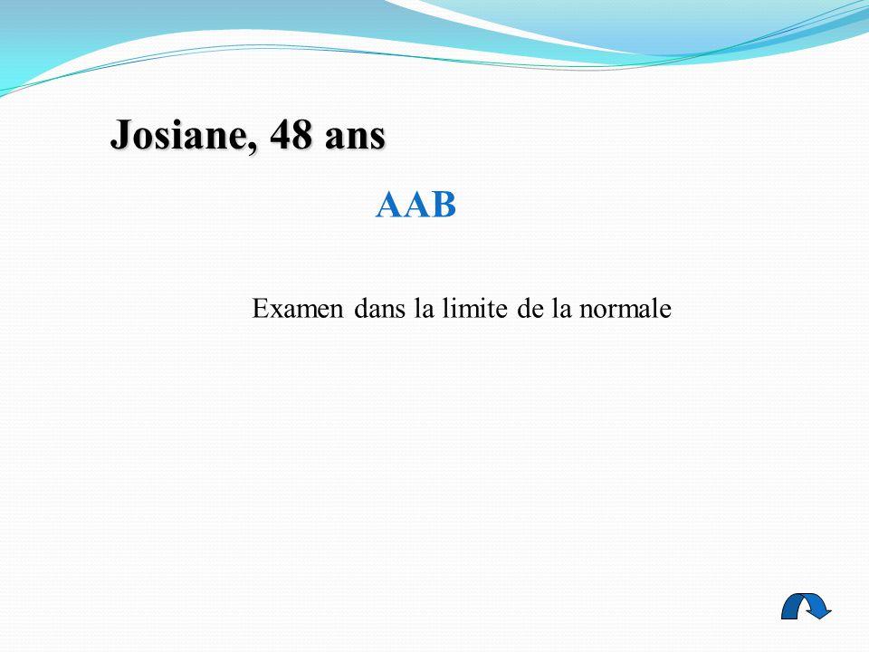 Josiane, 48 ans AAB Examen dans la limite de la normale