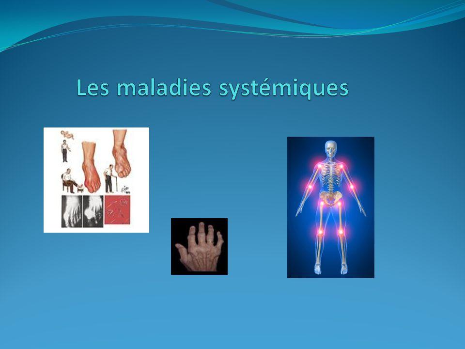 Les maladies systémiques