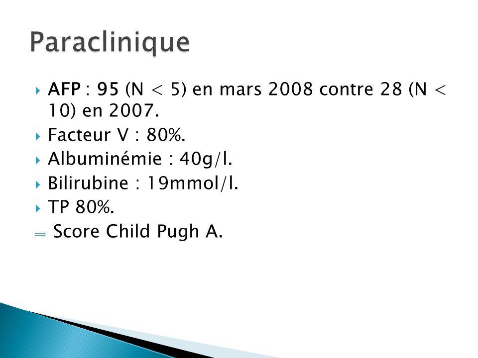 Paraclinique AFP : 95 (N < 5) en mars 2008 contre 28 (N < 10) en 2007. Facteur V : 80%. Albuminémie : 40g/l.