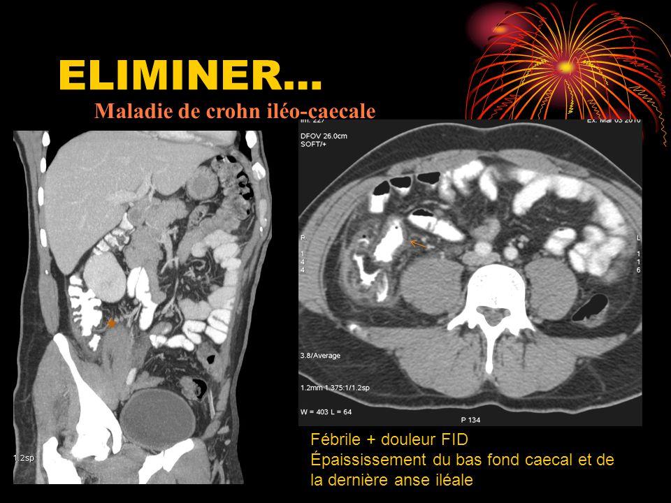 ELIMINER… Maladie de crohn iléo-caecale Fébrile + douleur FID