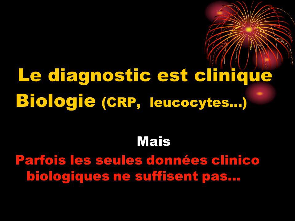 Le diagnostic est clinique