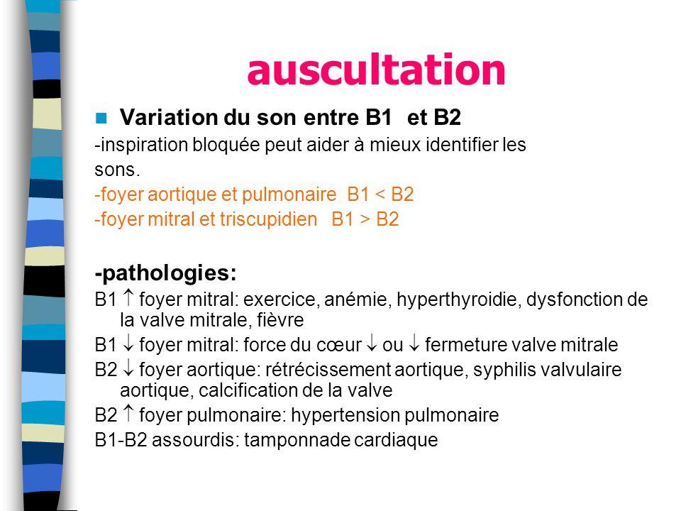 auscultation Variation du son entre B1 et B2 -pathologies: