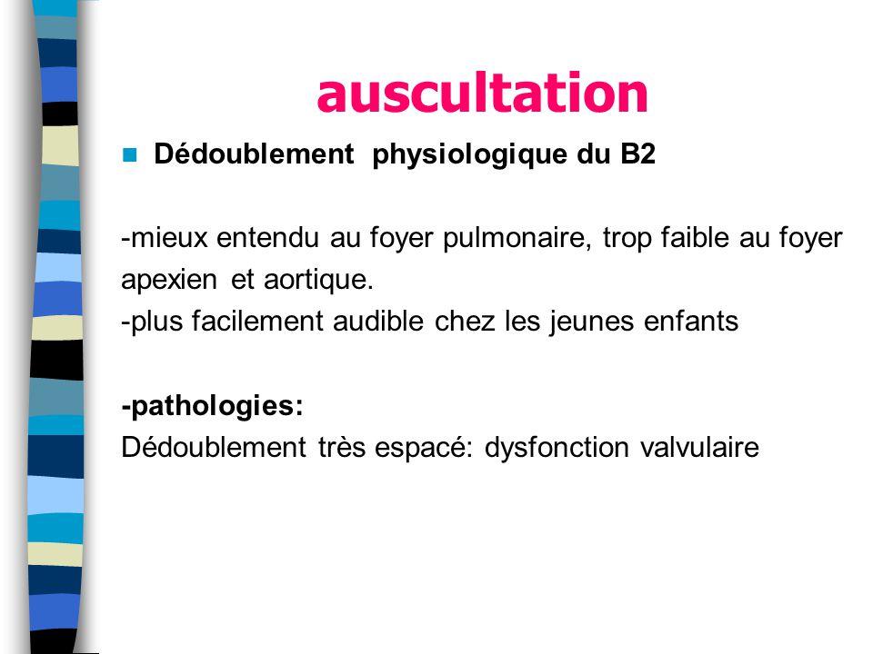 auscultation Dédoublement physiologique du B2