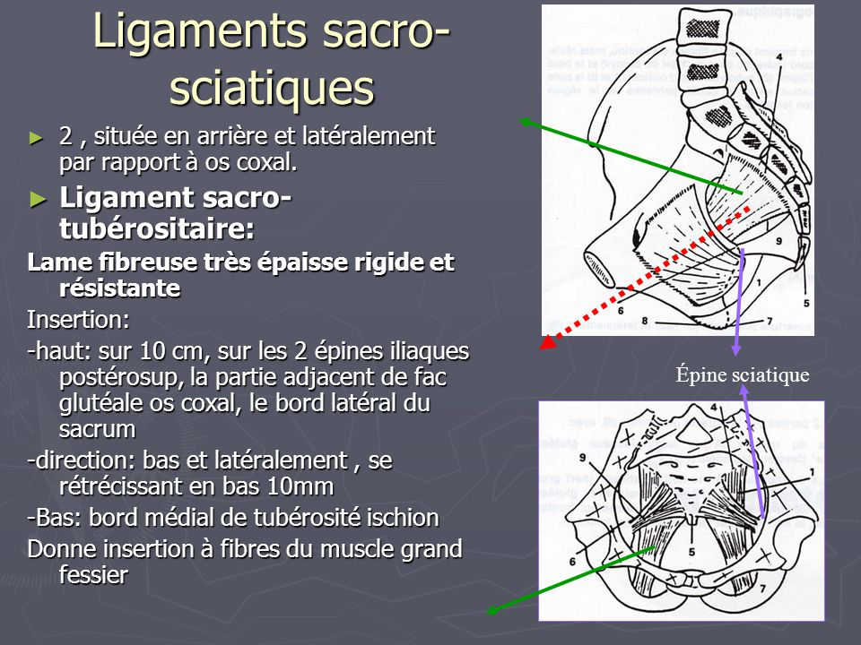 Ligaments sacro-sciatiques
