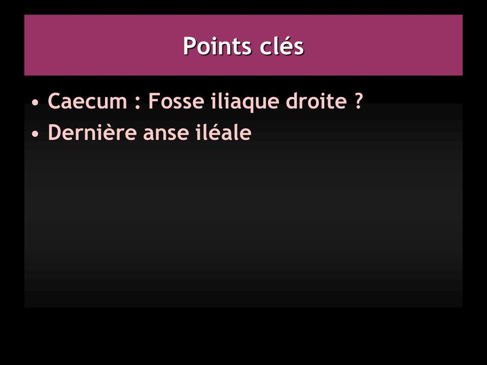 Points clés Caecum : Fosse iliaque droite Dernière anse iléale