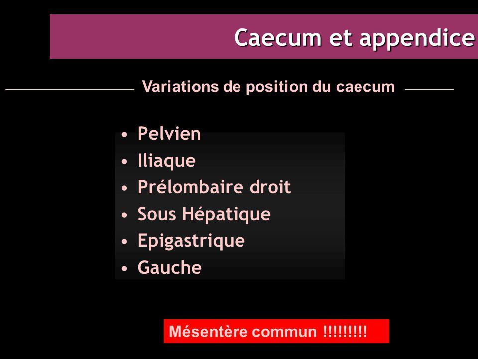 Caecum et appendice Pelvien Iliaque Prélombaire droit Sous Hépatique