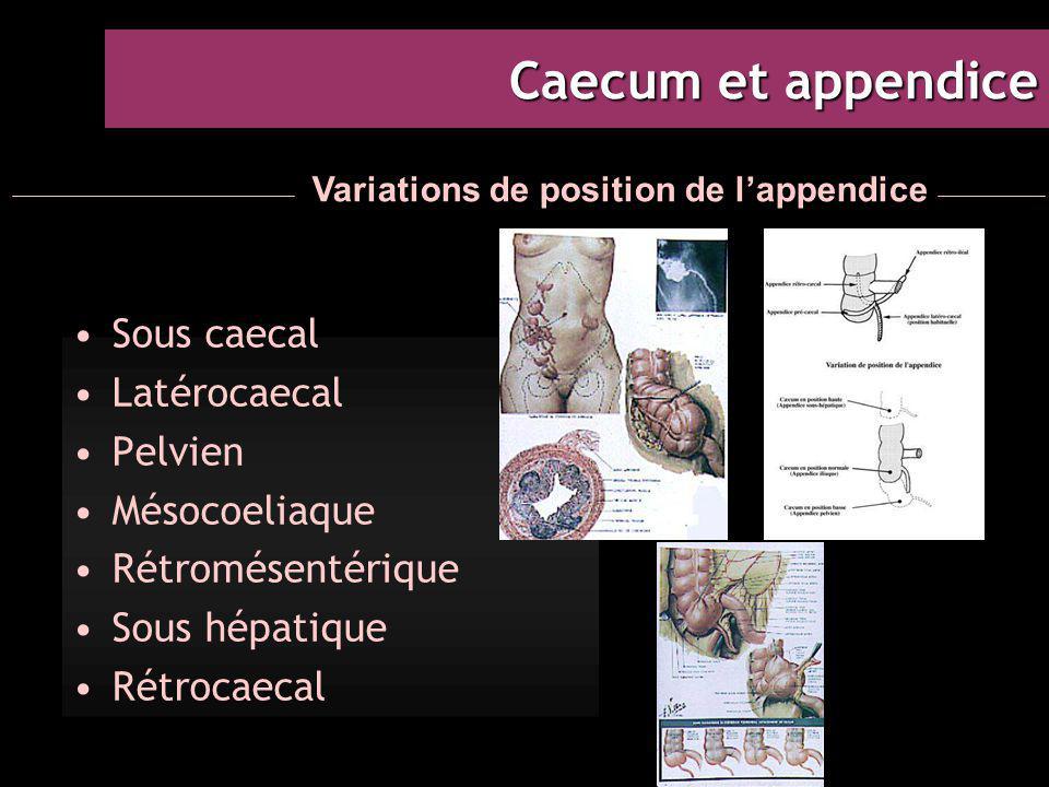 Caecum et appendice Sous caecal Latérocaecal Pelvien Mésocoeliaque