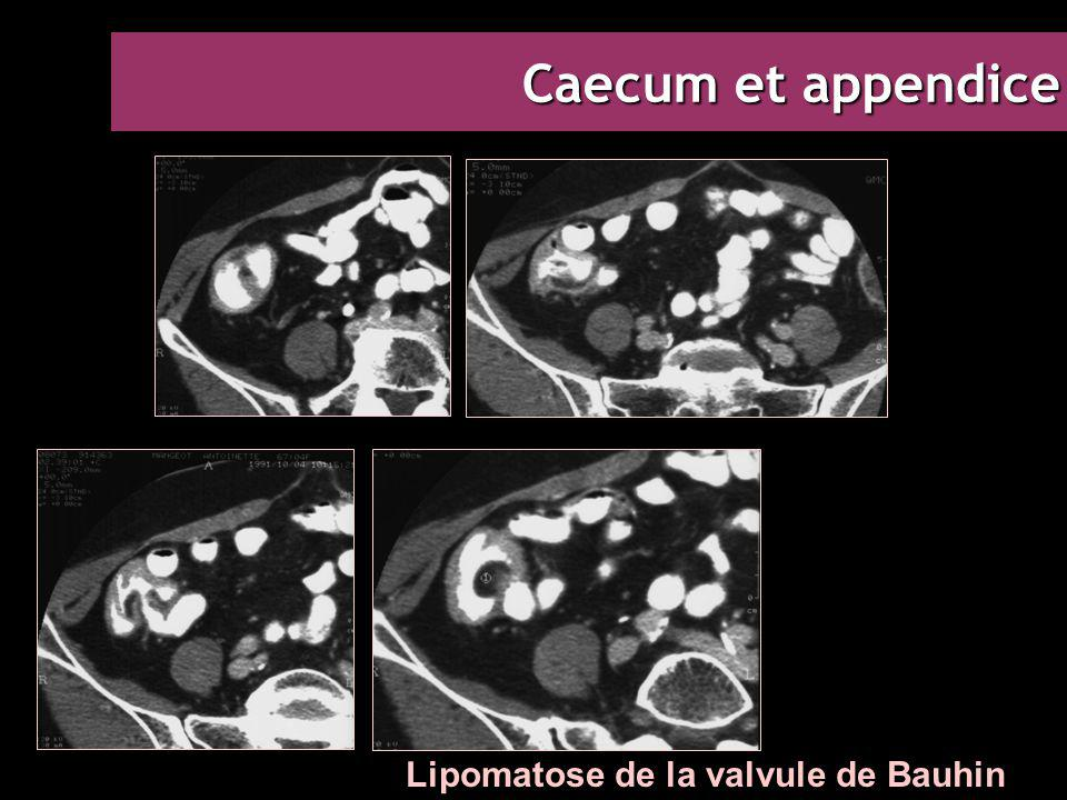 Caecum et appendice Lipomatose de la valvule de Bauhin