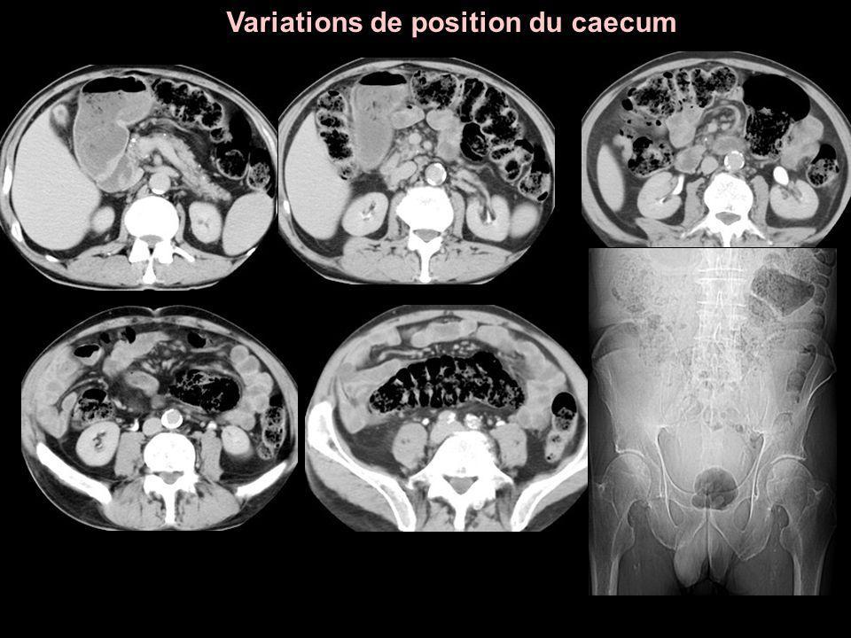 Variations de position du caecum