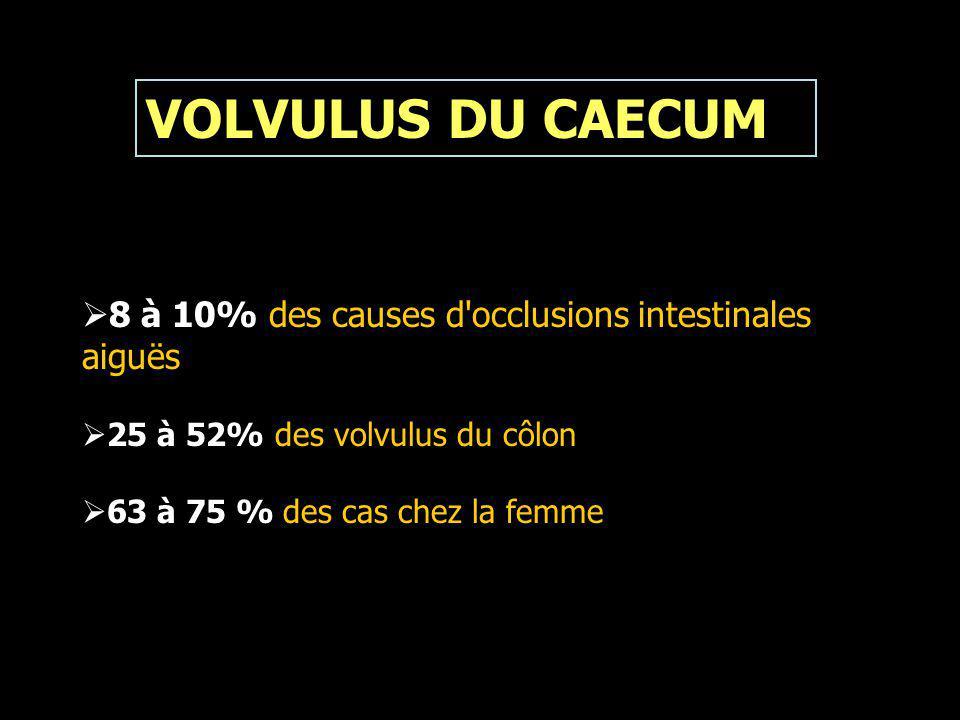 VOLVULUS DU CAECUM 8 à 10% des causes d occlusions intestinales aiguës