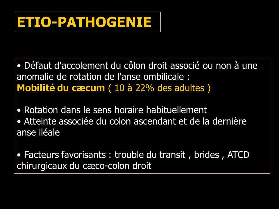 ETIO-PATHOGENIE Défaut d accolement du côlon droit associé ou non à une anomalie de rotation de l anse ombilicale :