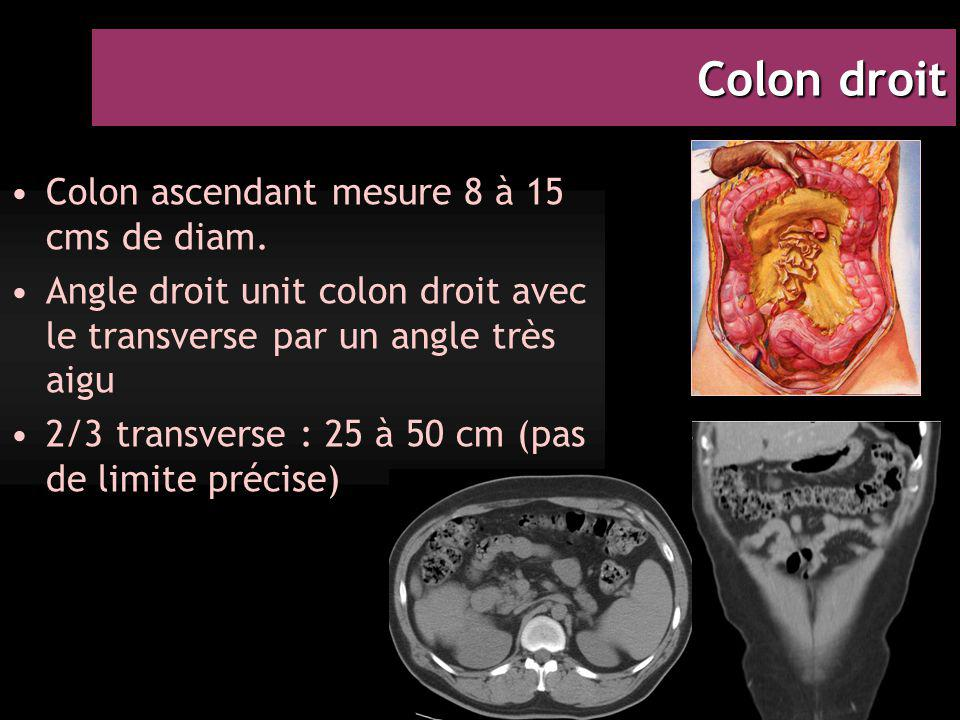 Colon droit Colon ascendant mesure 8 à 15 cms de diam.