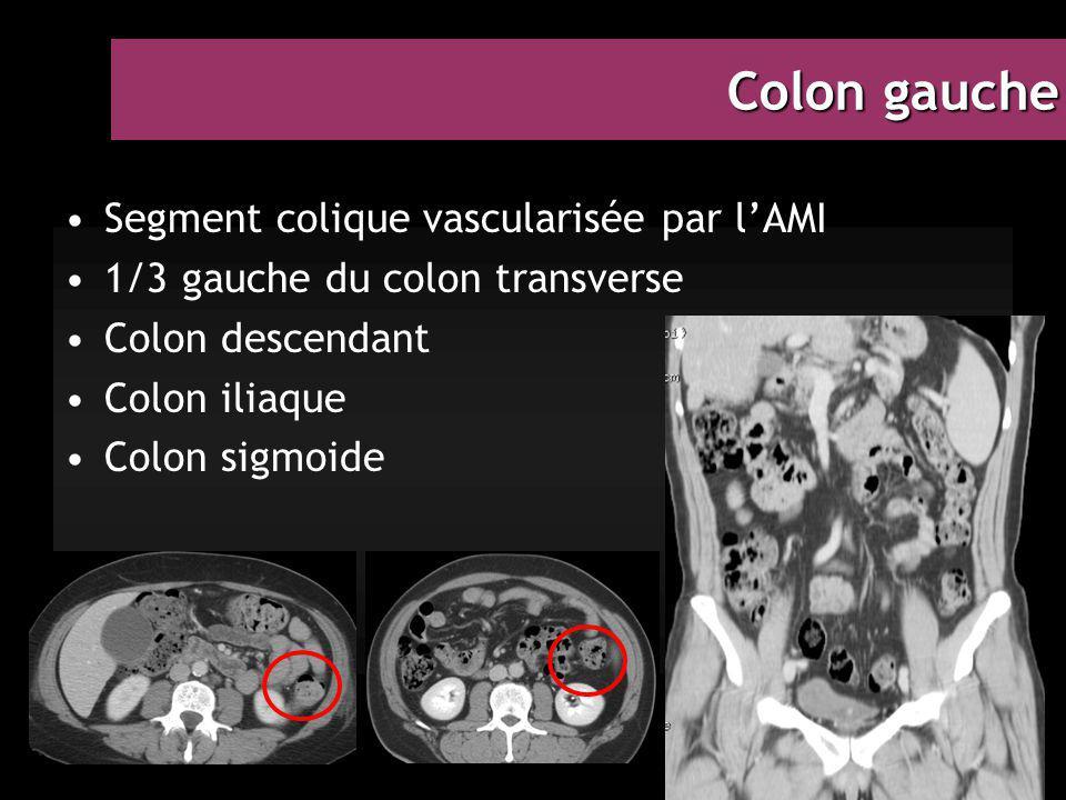 Colon gauche Segment colique vascularisée par l'AMI