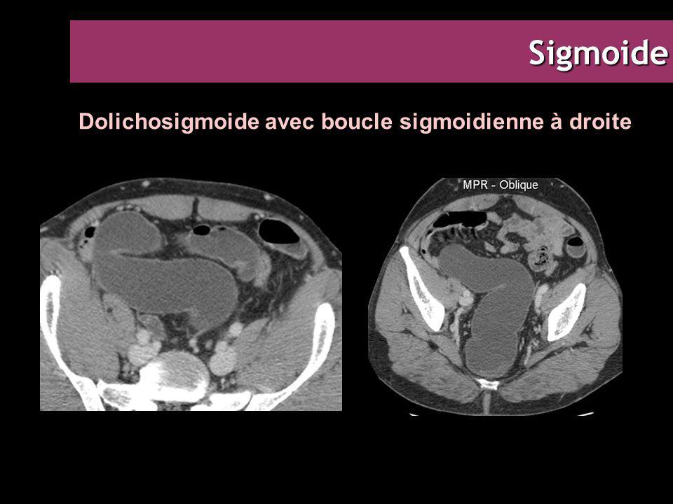 Dolichosigmoide avec boucle sigmoidienne à droite