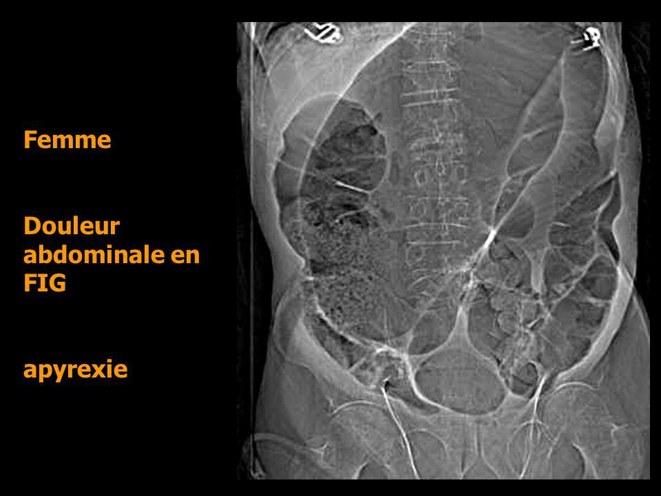 Femme Douleur abdominale en FIG apyrexie