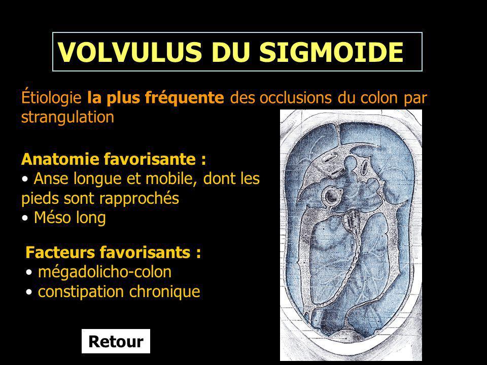 VOLVULUS DU SIGMOIDE Étiologie la plus fréquente des occlusions du colon par strangulation. Anatomie favorisante :