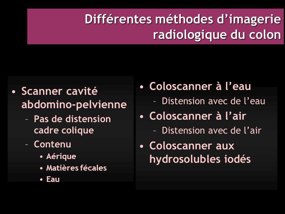 Différentes méthodes d'imagerie radiologique du colon