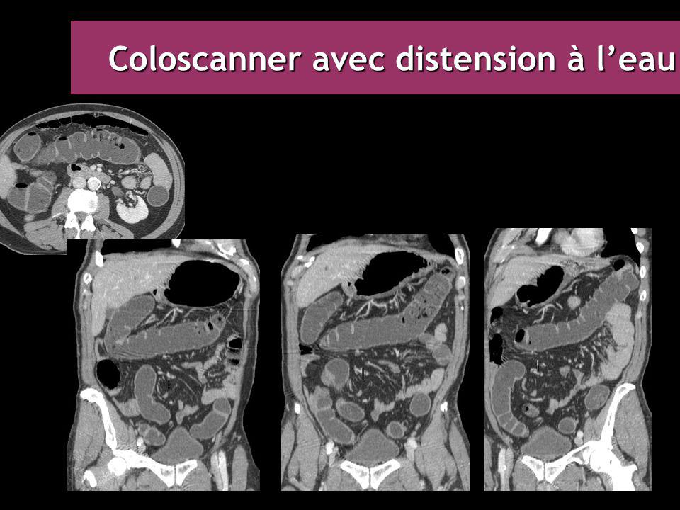 Coloscanner avec distension à l'eau