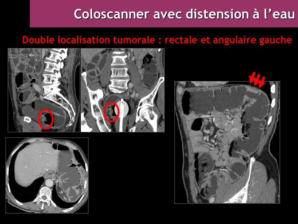Double localisation tumorale : rectale et angulaire gauche
