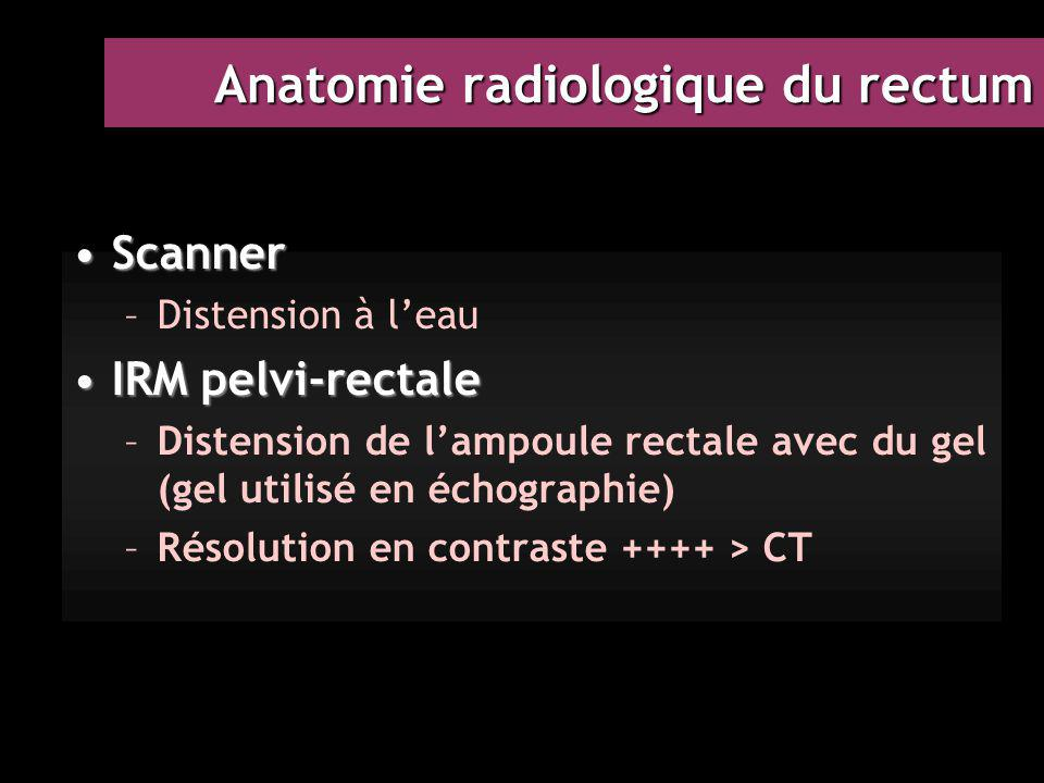 Anatomie radiologique du rectum