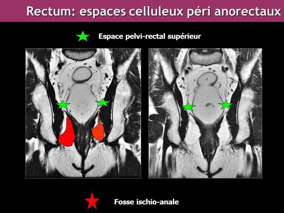 Rectum: espaces celluleux péri anorectaux