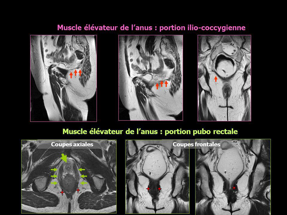 * Muscle élévateur de l'anus : portion ilio-coccygienne