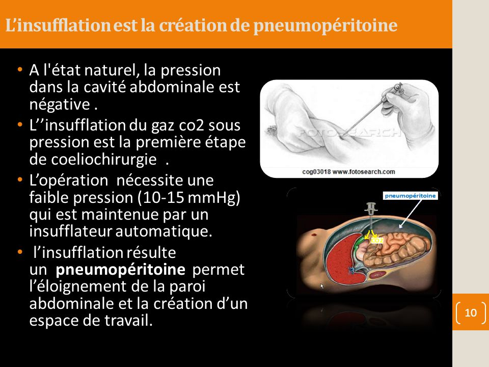 L'insufflation est la création de pneumopéritoine