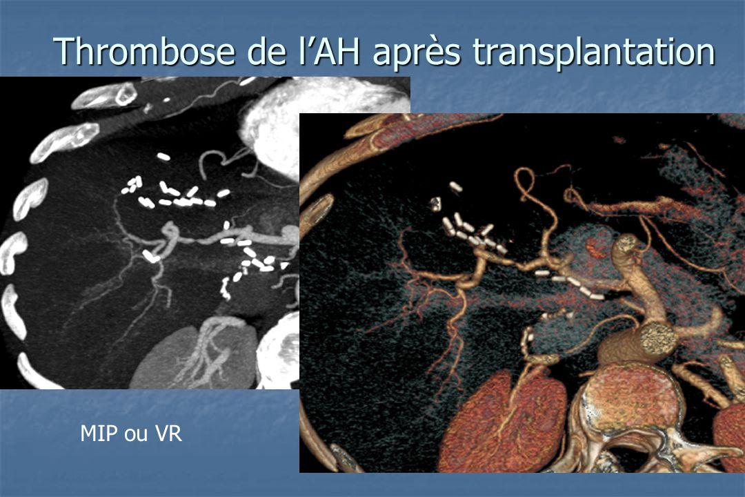 Thrombose de l'AH après transplantation