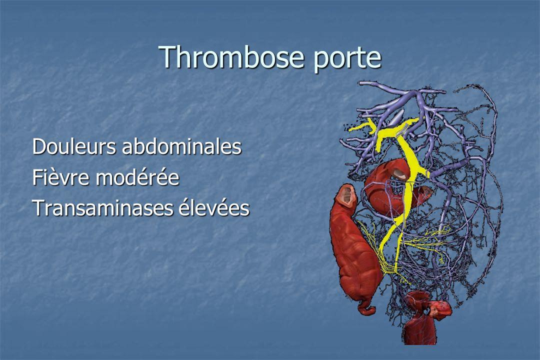 Thrombose porte Douleurs abdominales Fièvre modérée