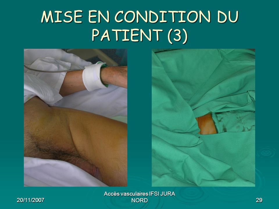 MISE EN CONDITION DU PATIENT (3)