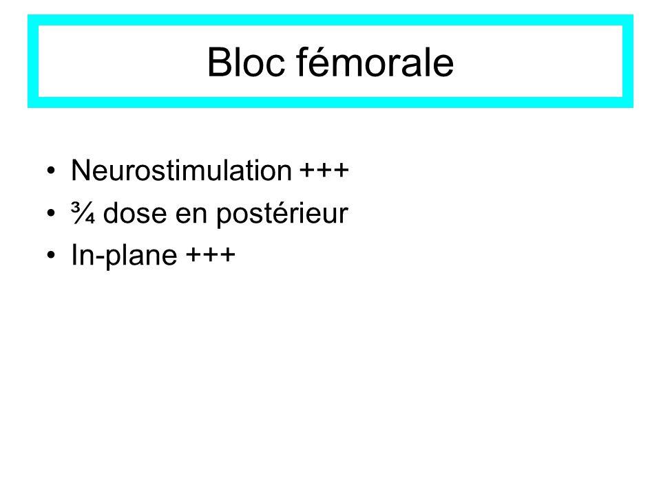 Bloc fémorale Neurostimulation +++ ¾ dose en postérieur In-plane +++
