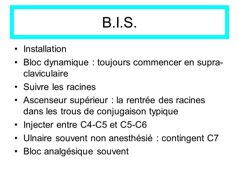 B.I.S. Installation. Bloc dynamique : toujours commencer en supra-claviculaire. Suivre les racines.