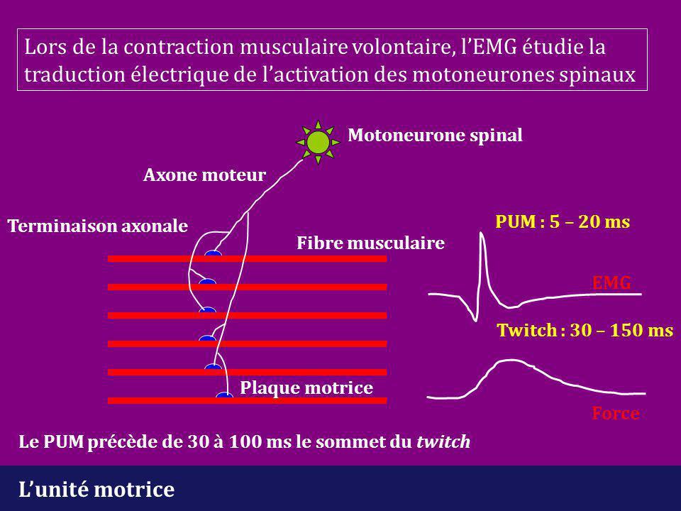 Lors de la contraction musculaire volontaire, l'EMG étudie la traduction électrique de l'activation des motoneurones spinaux