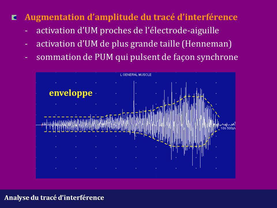 Augmentation d'amplitude du tracé d'interférence. -