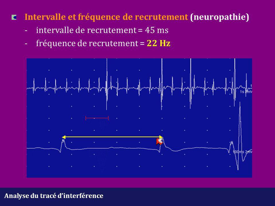 Intervalle et fréquence de recrutement (neuropathie). -