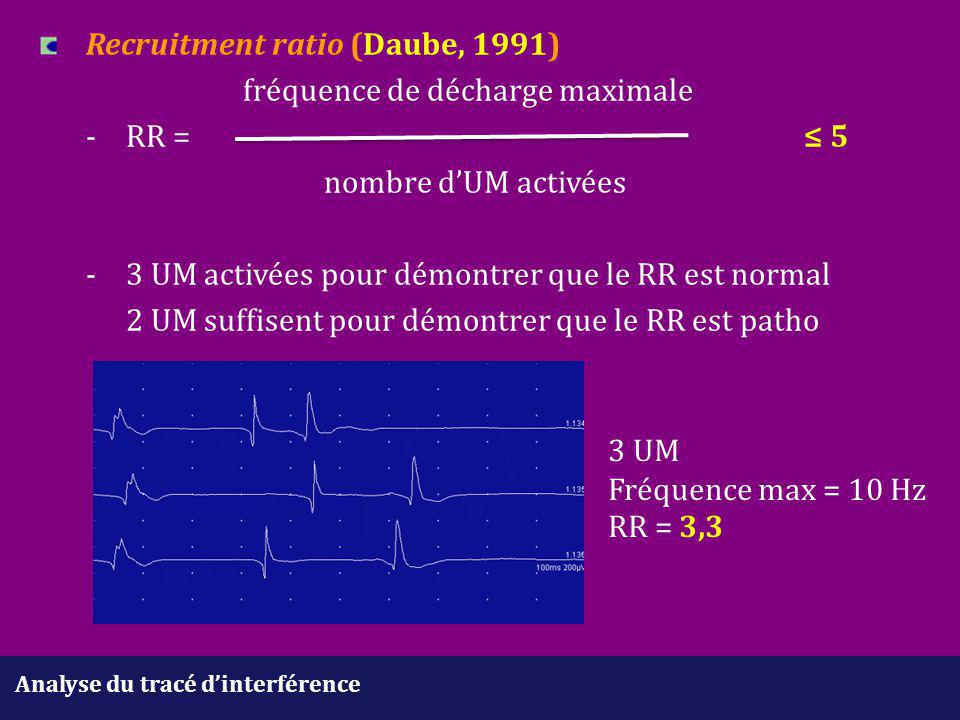 Recruitment ratio (Daube, 1991). fréquence de décharge maximale. -