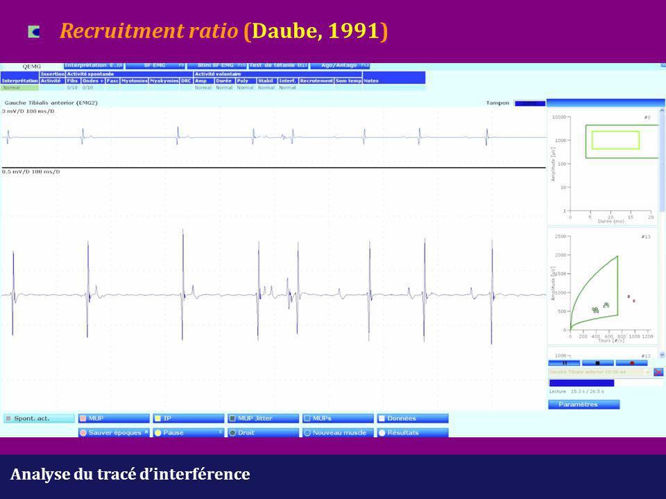 Recruitment ratio (Daube, 1991)