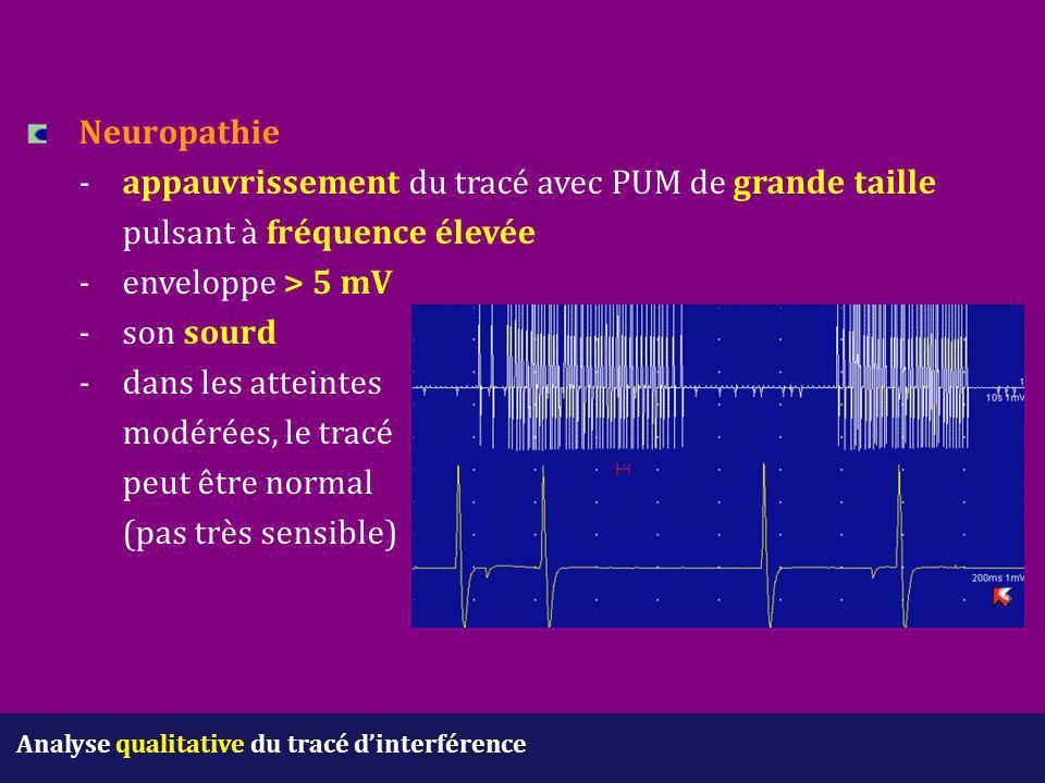 Neuropathie. -. appauvrissement du tracé avec PUM de grande taille