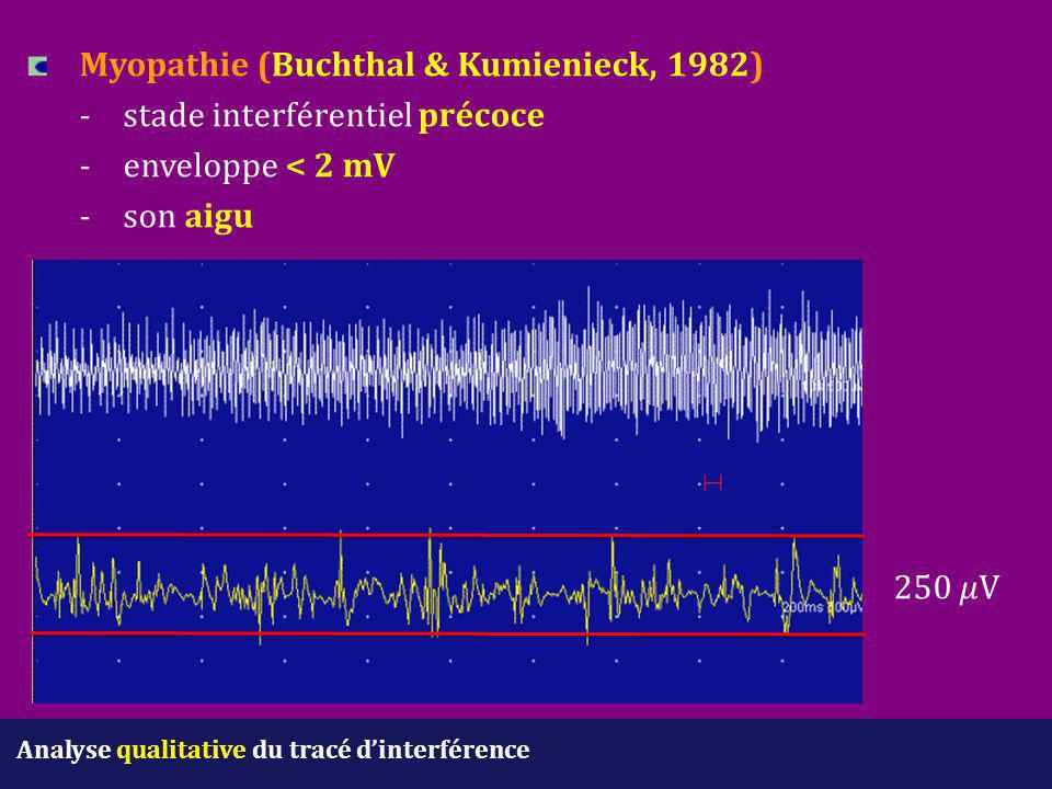 Myopathie (Buchthal & Kumienieck, 1982). -