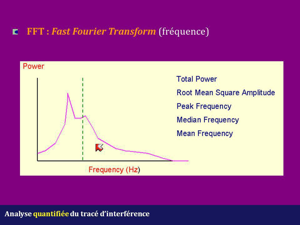 FFT : Fast Fourier Transform (fréquence)
