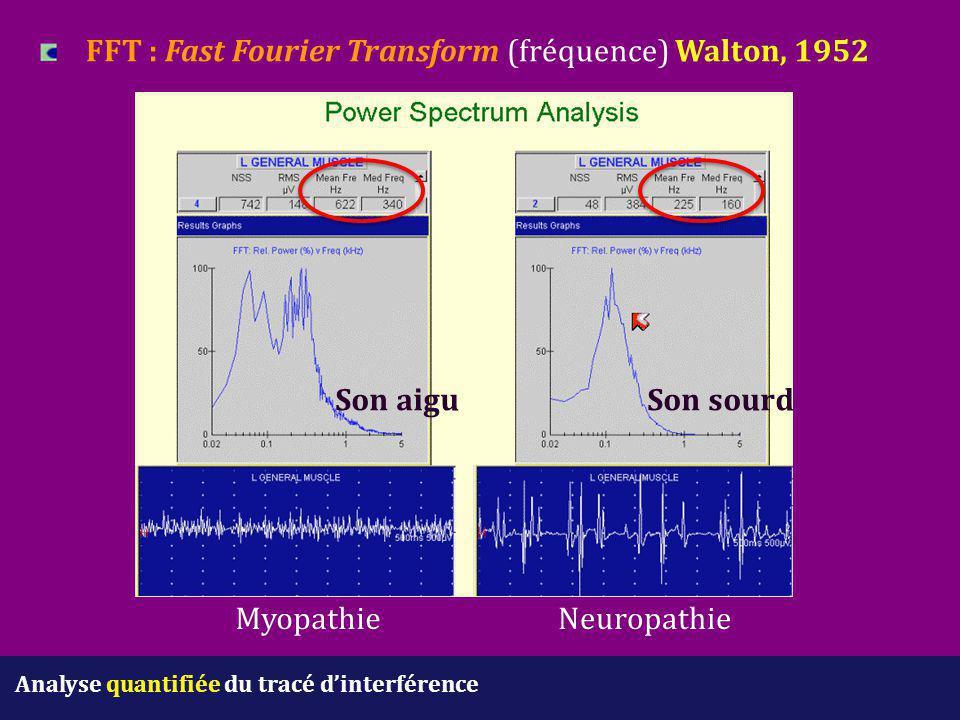 FFT : Fast Fourier Transform (fréquence) Walton, 1952