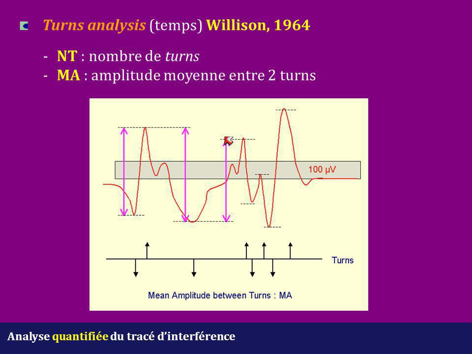 Turns analysis (temps) Willison, 1964