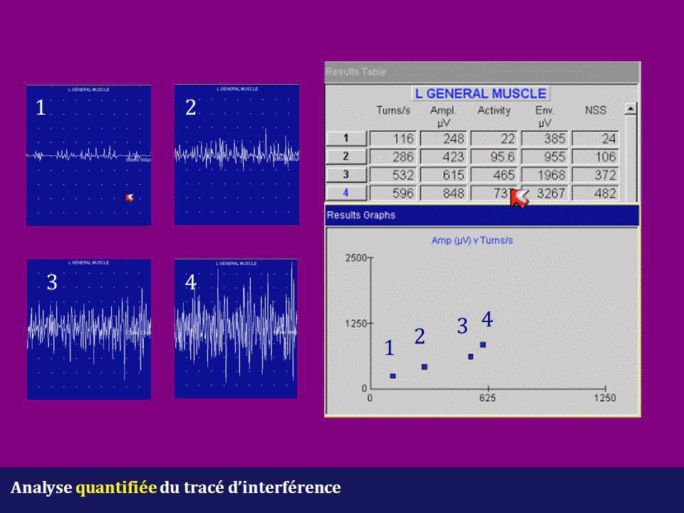 1 2 3 4 4 3 2 1 Analyse quantifiée du tracé d'interférence