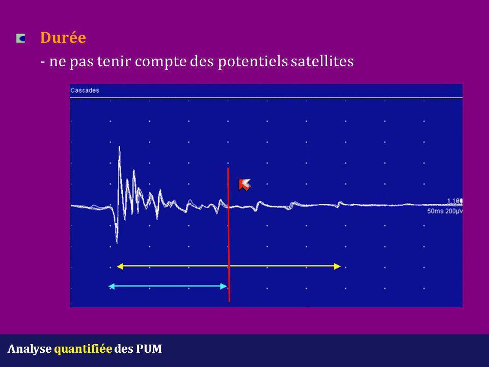 Durée - ne pas tenir compte des potentiels satellites