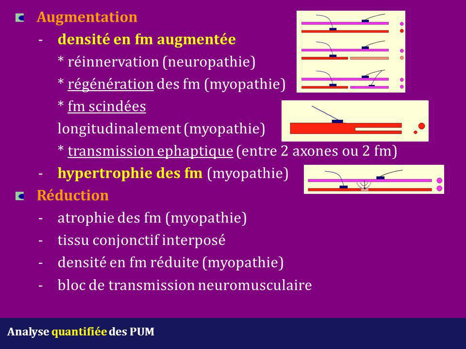 Augmentation. -. densité en fm augmentée. réinnervation (neuropathie)