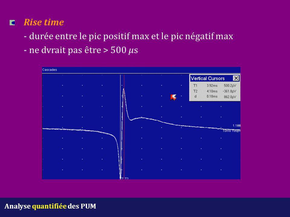 Rise time. - durée entre le pic positif max et le pic négatif max