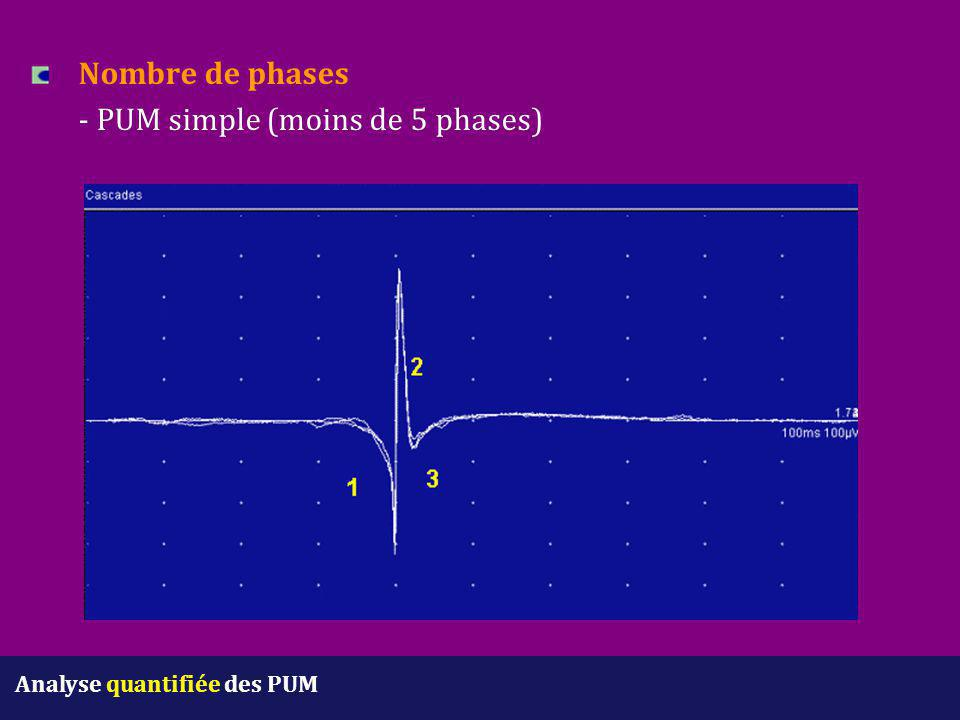 Nombre de phases - PUM simple (moins de 5 phases)
